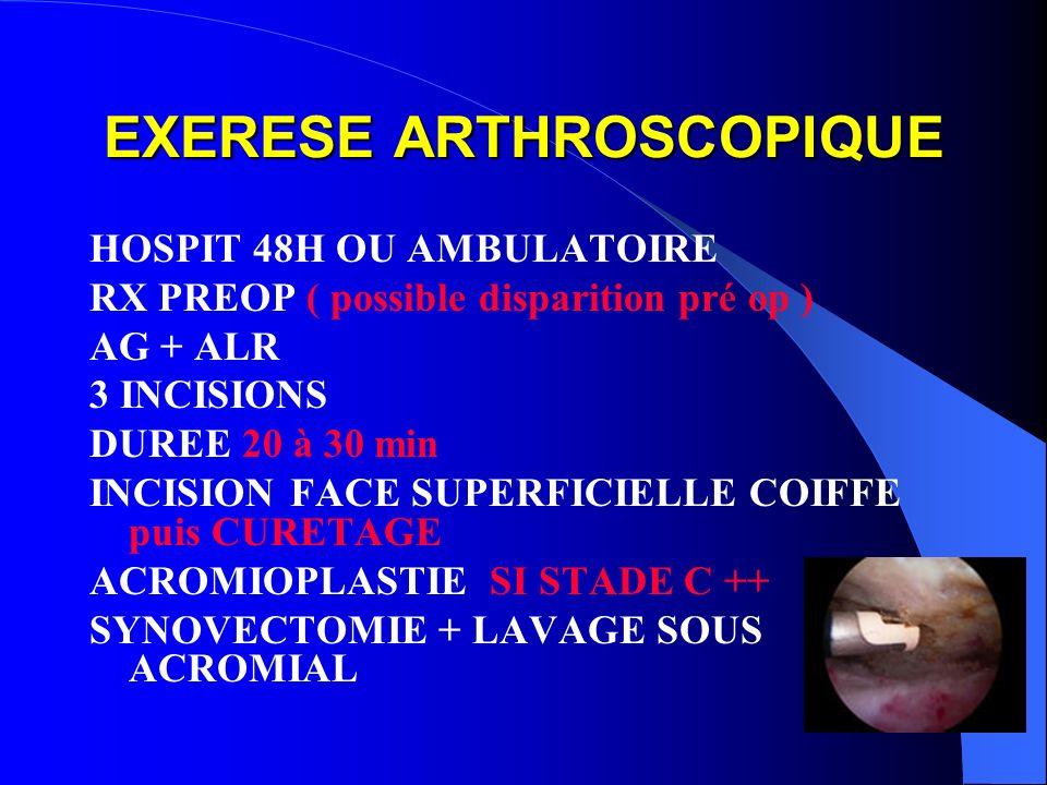 EXERESE ARTHROSCOPIQUE HOSPIT 48H OU AMBULATOIRE RX PREOP ( possible disparition pré op ) AG + ALR 3 INCISIONS DUREE 20 à 30 min INCISION FACE SUPERFI