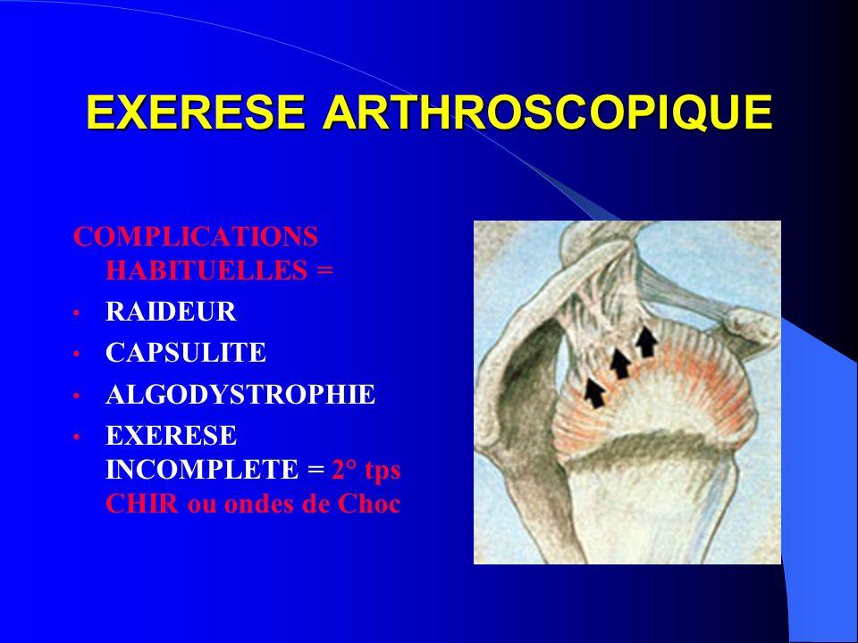 EXERESE ARTHROSCOPIQUE COMPLICATIONS HABITUELLES = RAIDEUR CAPSULITE ALGODYSTROPHIE EXERESE INCOMPLETE = 2° tps CHIR ou ondes de Choc
