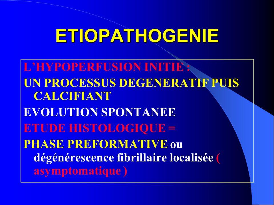 ETIOPATHOGENIE LHYPOPERFUSION INITIE : UN PROCESSUS DEGENERATIF PUIS CALCIFIANT EVOLUTION SPONTANEE ETUDE HISTOLOGIQUE = PHASE PREFORMATIVE ou dégénér