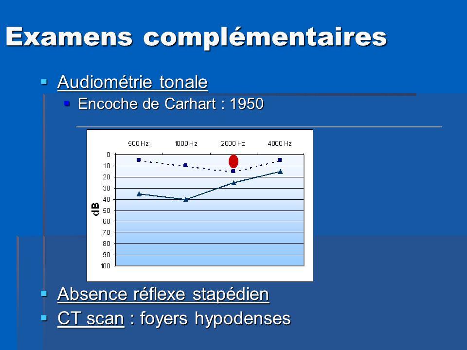 Audiométrie tonale Audiométrie tonale Encoche de Carhart : 1950 Encoche de Carhart : 1950 Absence réflexe stapédien Absence réflexe stapédien CT scan