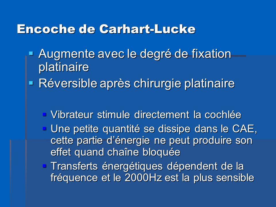 Encoche de Carhart-Lucke Augmente avec le degré de fixation platinaire Augmente avec le degré de fixation platinaire Réversible après chirurgie platin
