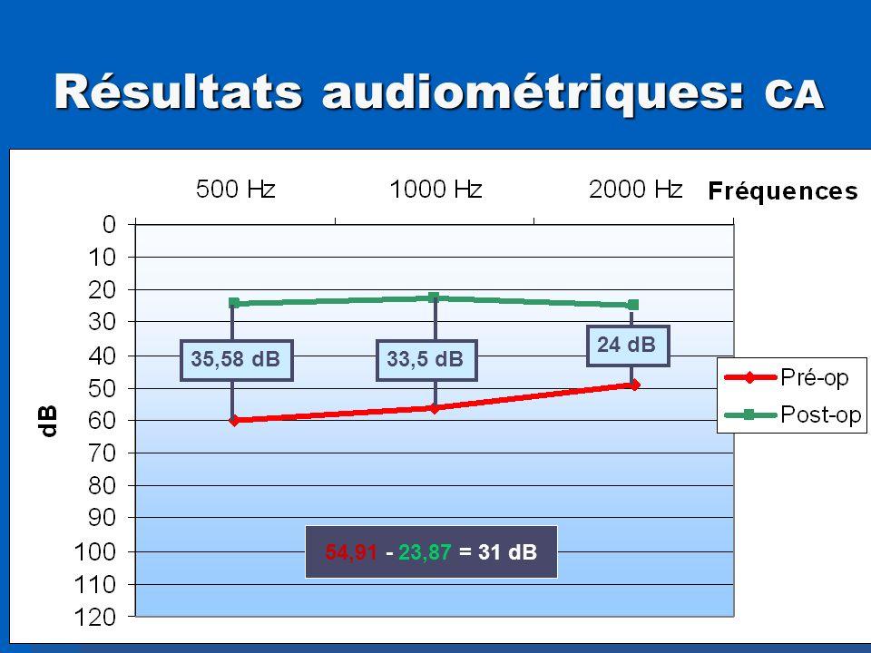 Résultats audiométriques: CA 24 dB 35,58 dB33,5 dB 54,91 - 23,87 = 31 dB