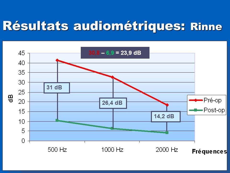 Résultats audiométriques: Rinne 31 dB 26,4 dB 14,2 dB 30,8 – 6,9 = 23,9 dB