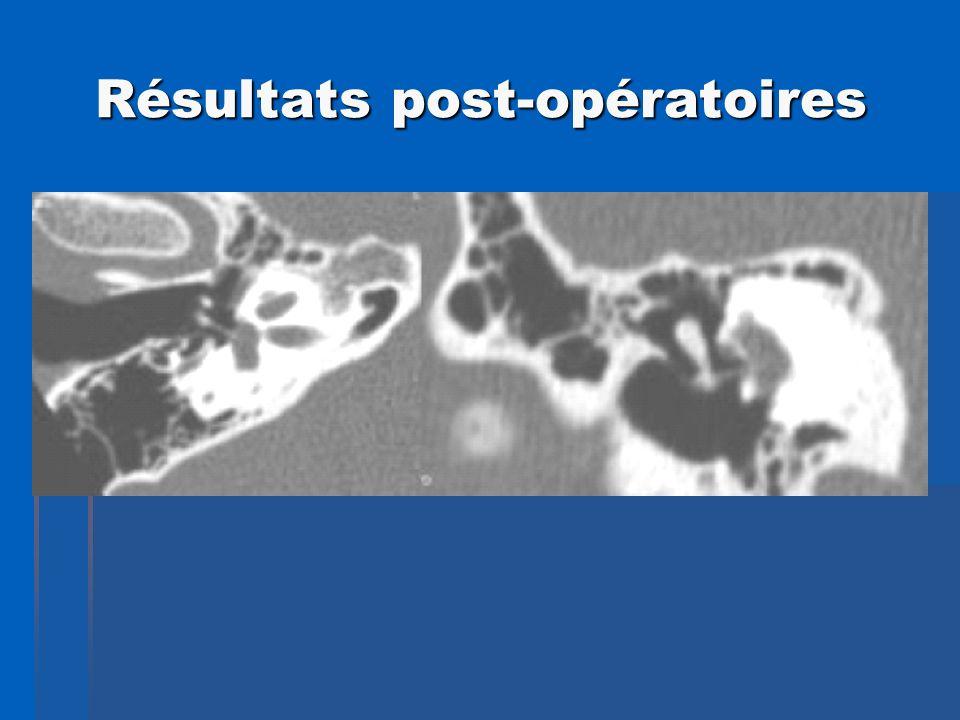 Résultats post-opératoires Résultats post-opératoires