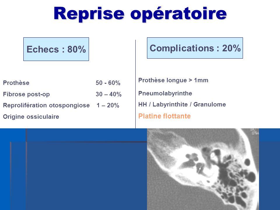 Reprise opératoire Echecs : 80% Complications : 20% Prothèse longue > 1mm Pneumolabyrinthe HH / Labyrinthite / Granulome Platine flottante Prothèse 50