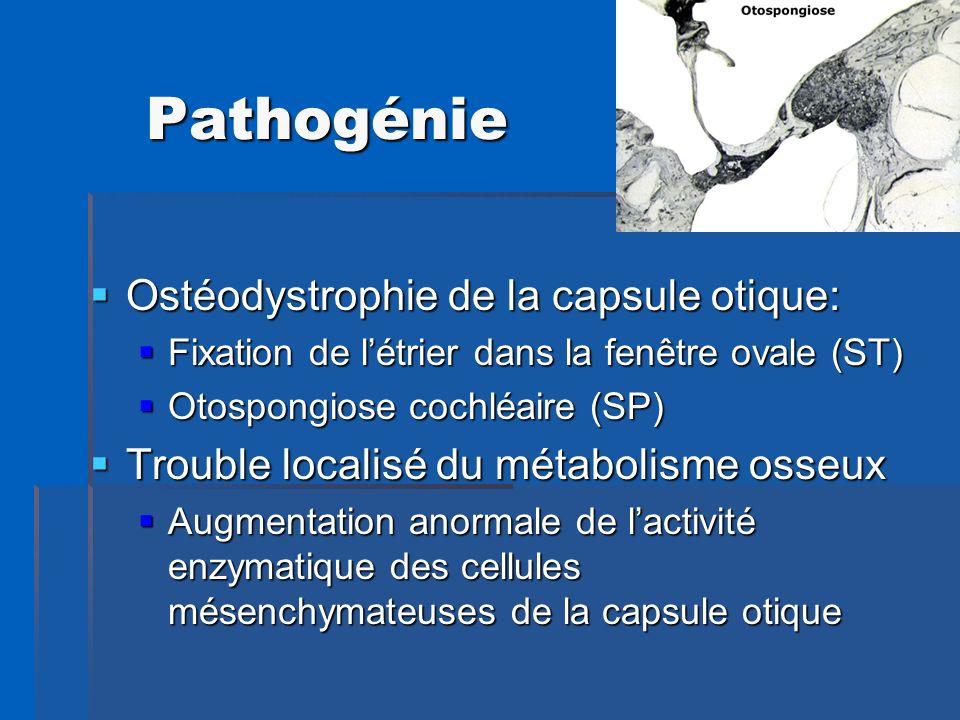 Pathogénie Ostéodystrophie de la capsule otique: Ostéodystrophie de la capsule otique: Fixation de létrier dans la fenêtre ovale (ST) Fixation de létr