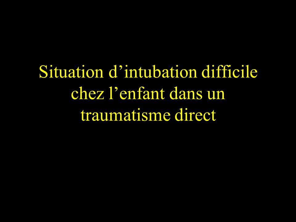 Situation dintubation difficile chez lenfant dans un traumatisme direct