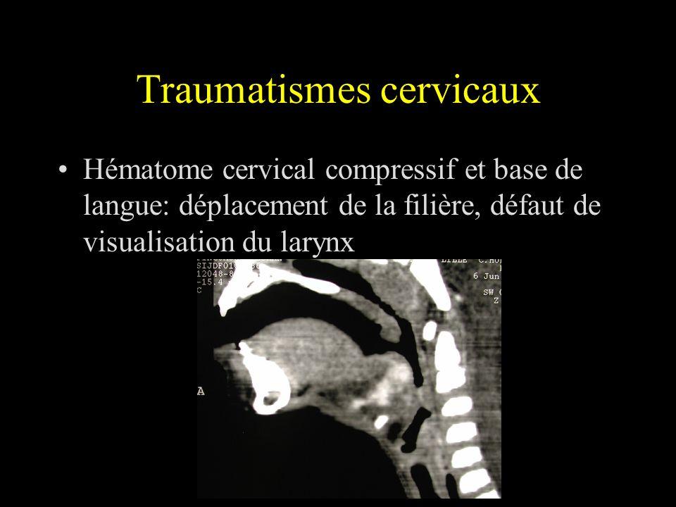 Traumatismes cervicaux Hématome cervical compressif et base de langue: déplacement de la filière, défaut de visualisation du larynx