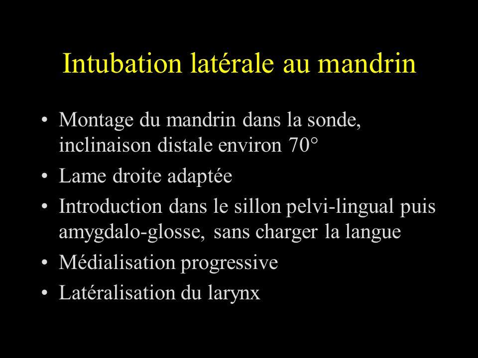 Intubation latérale au mandrin Montage du mandrin dans la sonde, inclinaison distale environ 70° Lame droite adaptée Introduction dans le sillon pelvi