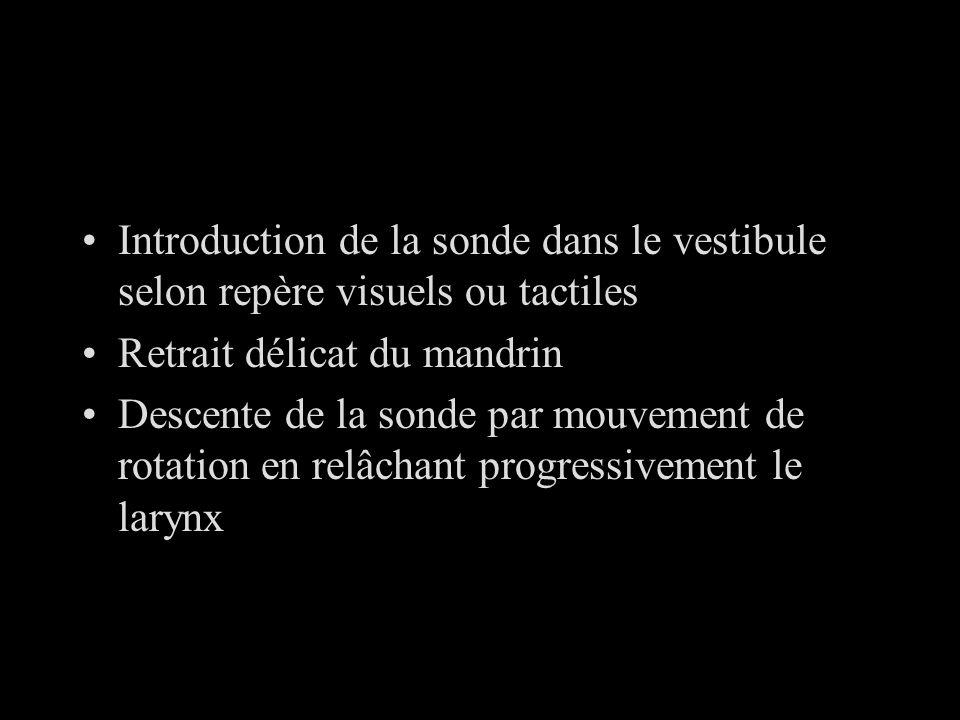 Introduction de la sonde dans le vestibule selon repère visuels ou tactiles Retrait délicat du mandrin Descente de la sonde par mouvement de rotation