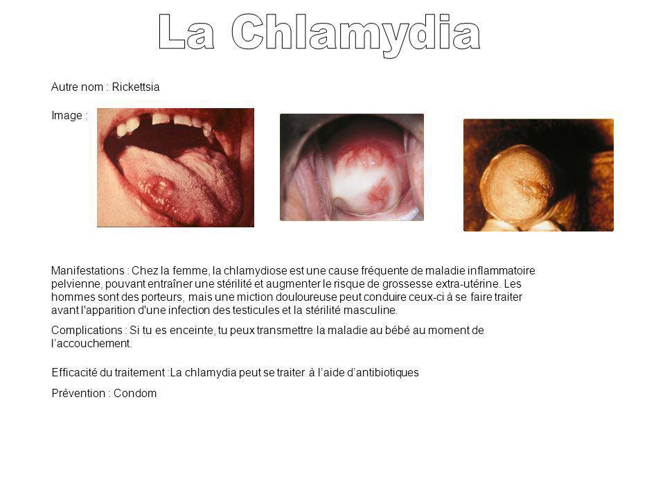 Autre nom : Rickettsia Image : Manifestations : Chez la femme, la chlamydiose est une cause fréquente de maladie inflammatoire pelvienne, pouvant entr