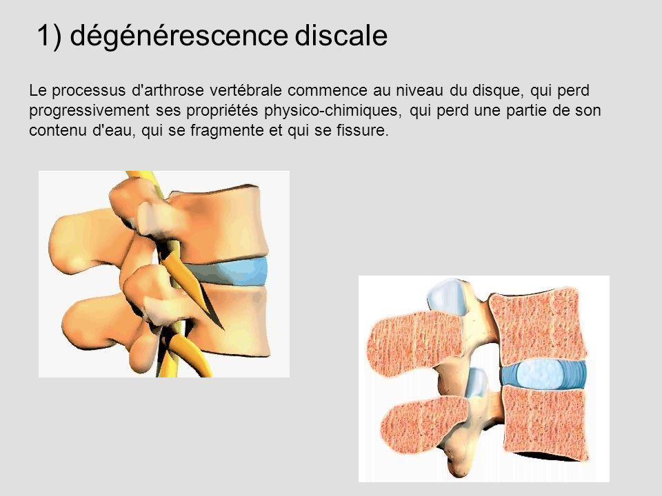 1) dégénérescence discale Le processus d'arthrose vertébrale commence au niveau du disque, qui perd progressivement ses propriétés physico-chimiques,