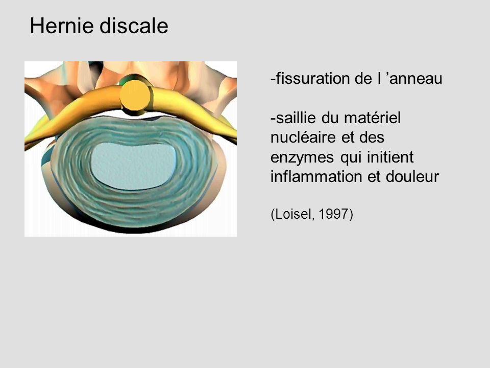 Hernie discale -fissuration de l anneau -saillie du matériel nucléaire et des enzymes qui initient inflammation et douleur (Loisel, 1997)