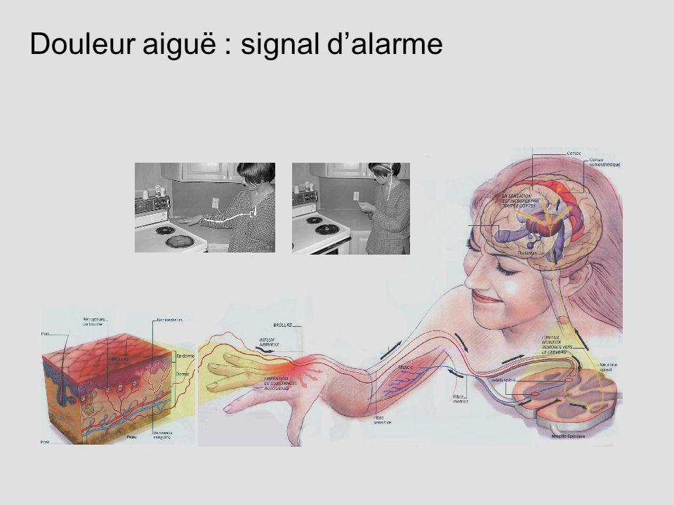 Douleur aiguë : signal dalarme
