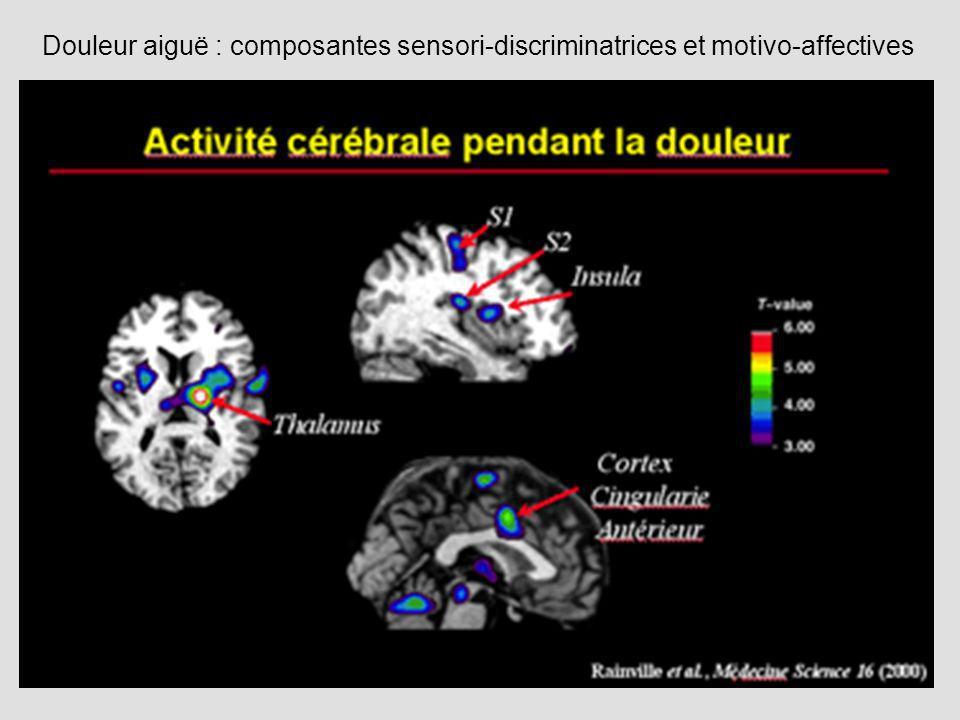 Douleur aiguë : composantes sensori-discriminatrices et motivo-affectives