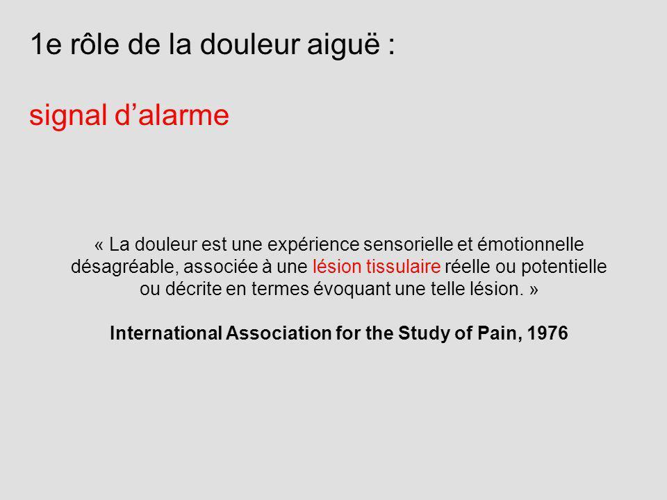 « La douleur est une expérience sensorielle et émotionnelle désagréable, associée à une lésion tissulaire réelle ou potentielle ou décrite en termes é