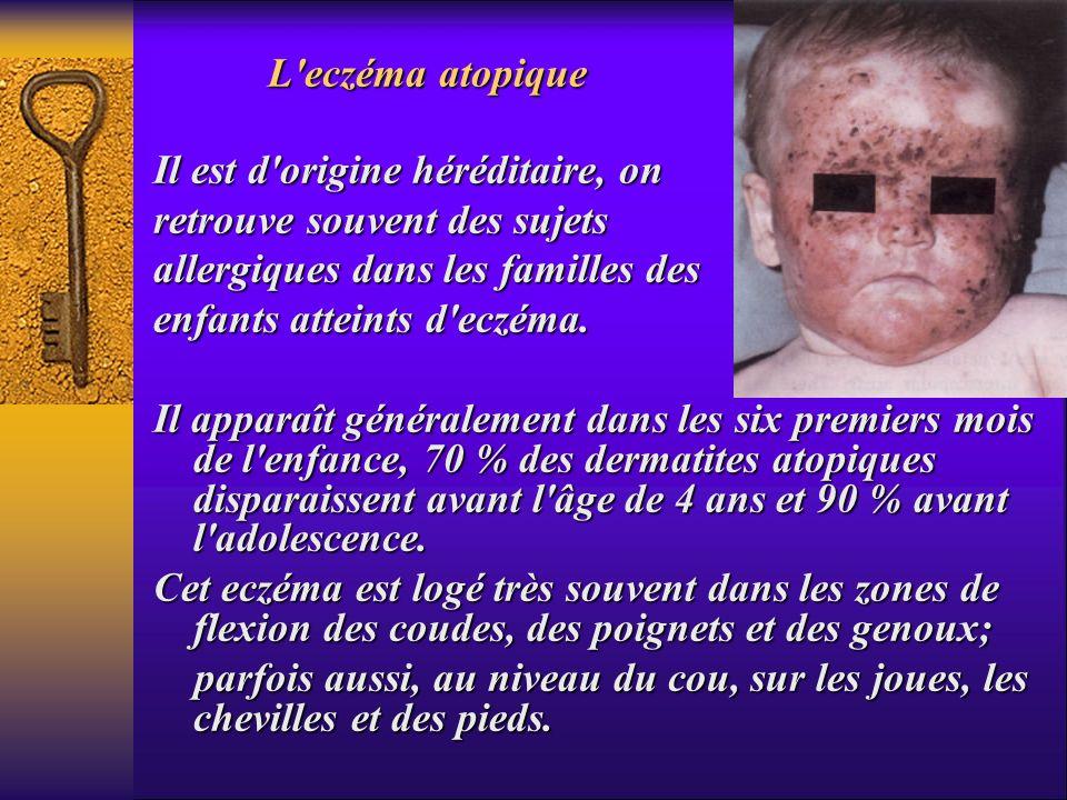 L'eczéma atopique Il est d'origine héréditaire, on retrouve souvent des sujets allergiques dans les familles des enfants atteints d'eczéma. Il apparaî