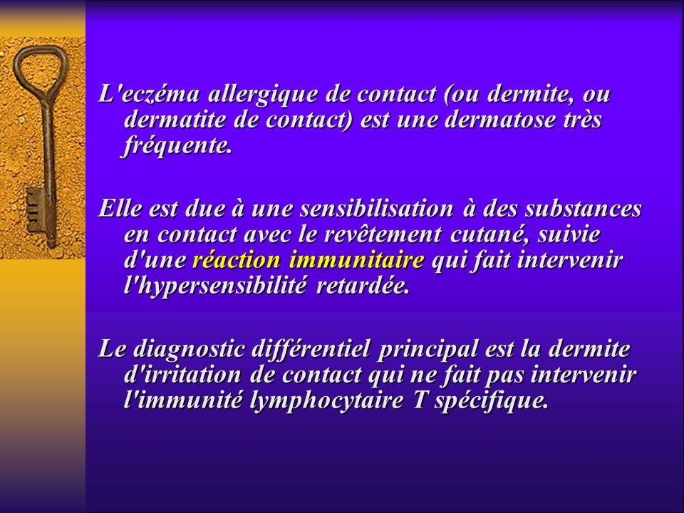 L'eczéma allergique de contact (ou dermite, ou dermatite de contact) est une dermatose très fréquente. Elle est due à une sensibilisation à des substa