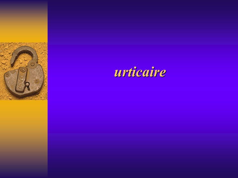 urticaire