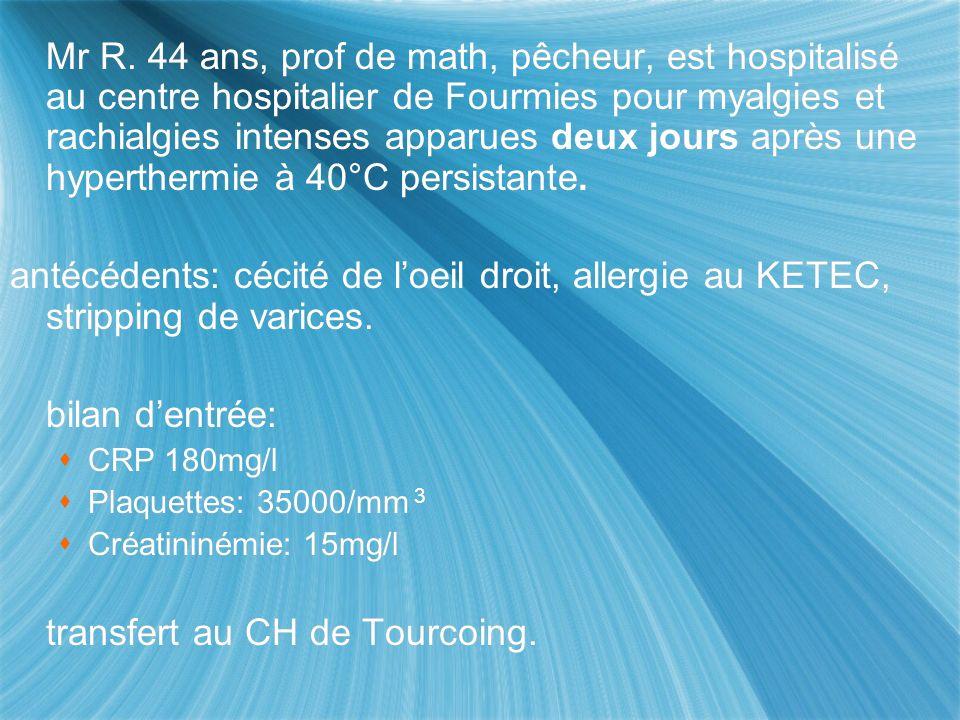 Mr R. 44 ans, prof de math, pêcheur, est hospitalisé au centre hospitalier de Fourmies pour myalgies et rachialgies intenses apparues deux jours après