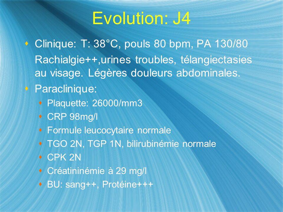 Evolution: J4 Clinique: T: 38°C, pouls 80 bpm, PA 130/80 Rachialgie++,urines troubles, télangiectasies au visage. Légères douleurs abdominales. Paracl
