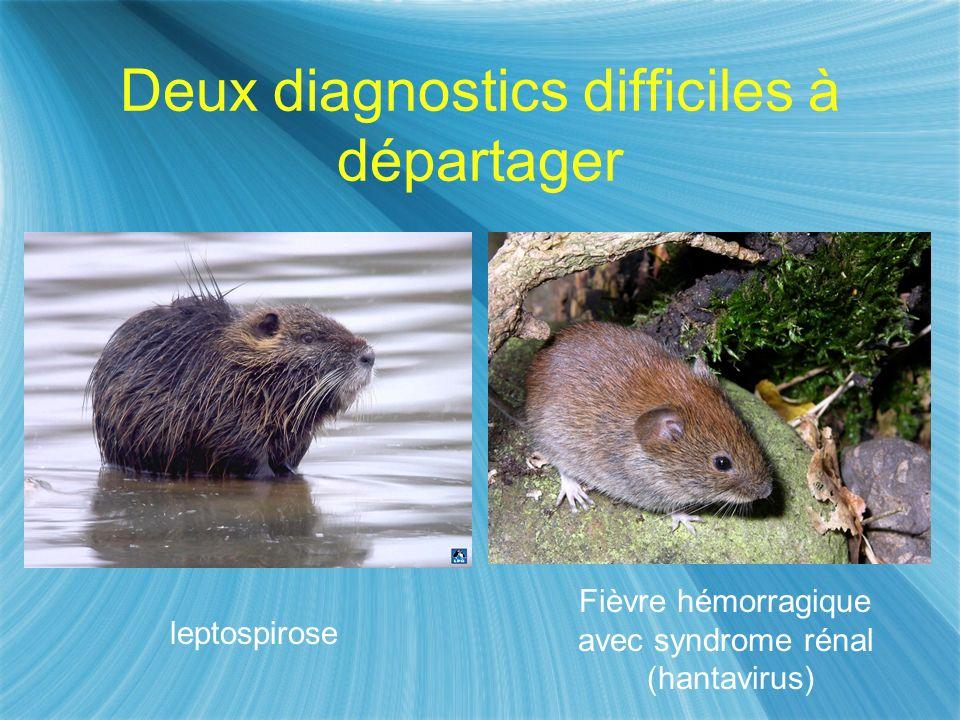 Deux diagnostics difficiles à départager leptospirose Fièvre hémorragique avec syndrome rénal (hantavirus)