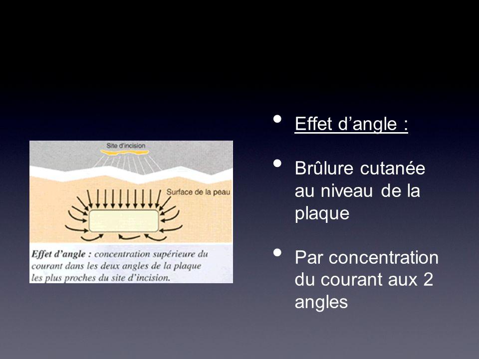 Effet dangle : Brûlure cutanée au niveau de la plaque Par concentration du courant aux 2 angles