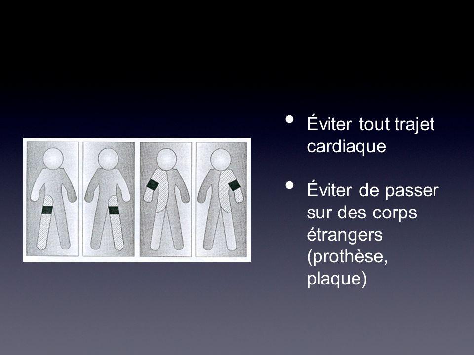 Éviter tout trajet cardiaque Éviter de passer sur des corps étrangers (prothèse, plaque)