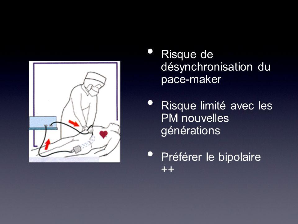 Risque de désynchronisation du pace-maker Risque limité avec les PM nouvelles générations Préférer le bipolaire ++