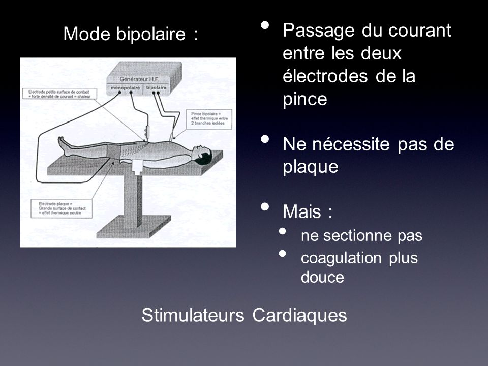 Passage du courant entre les deux électrodes de la pince Ne nécessite pas de plaque Mais : ne sectionne pas coagulation plus douce Mode bipolaire : St