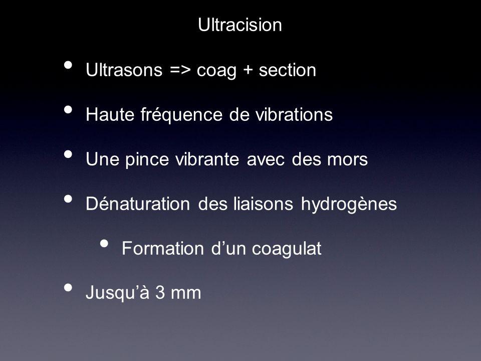 Ultrasons => coag + section Haute fréquence de vibrations Une pince vibrante avec des mors Dénaturation des liaisons hydrogènes Formation dun coagulat