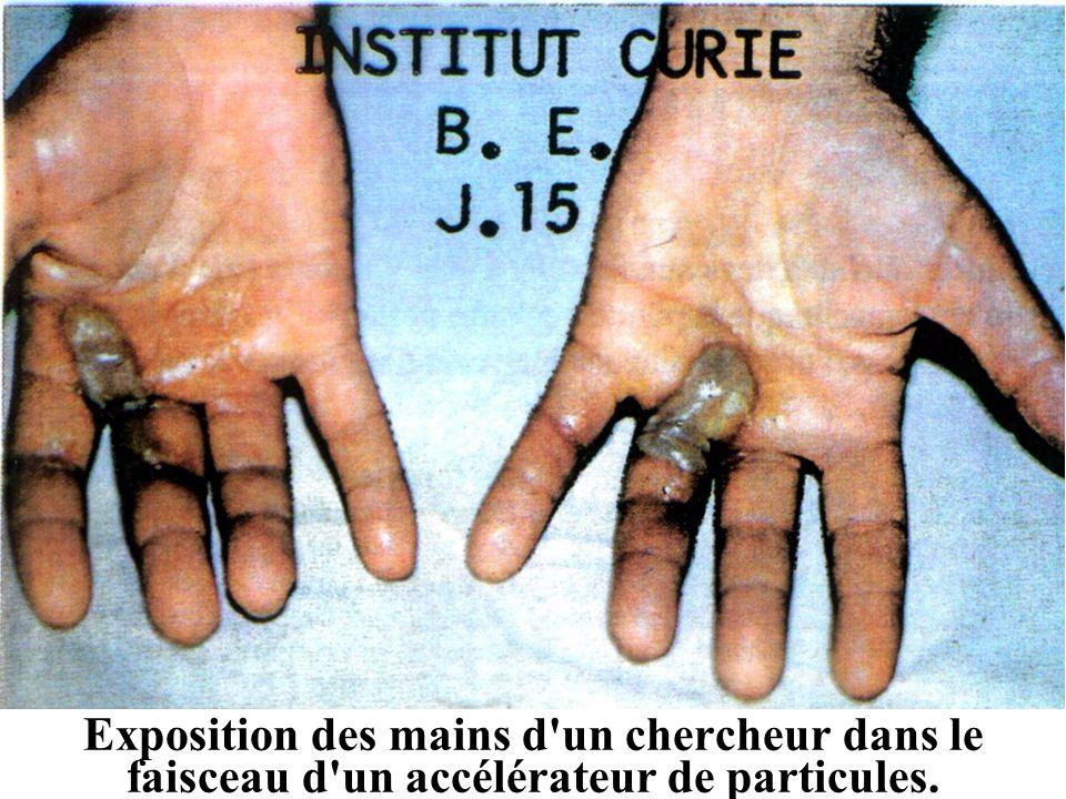 Exposition des mains d'un chercheur dans le faisceau d'un accélérateur de particules.