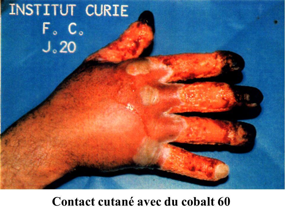 Contact cutané avec du cobalt 60