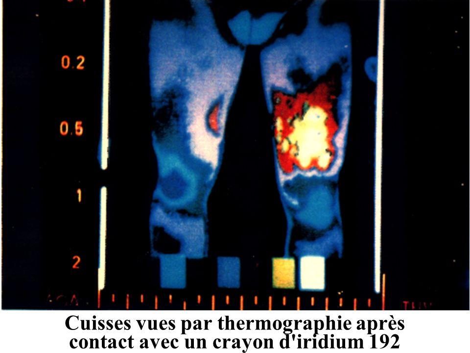 Cuisses vues par thermographie après contact avec un crayon d'iridium 192