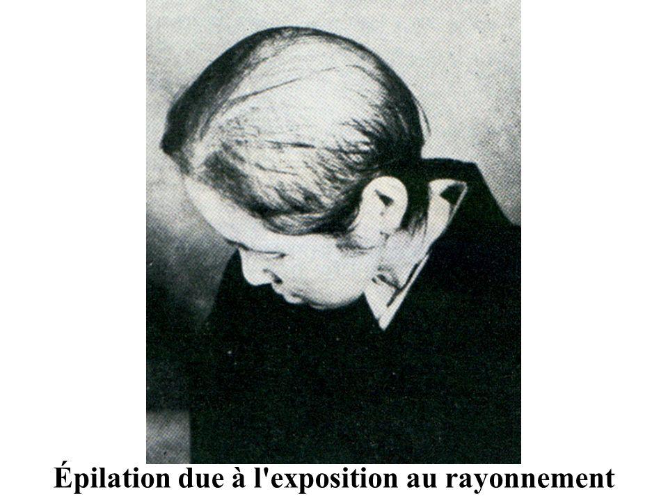 Épilation due à l'exposition au rayonnement
