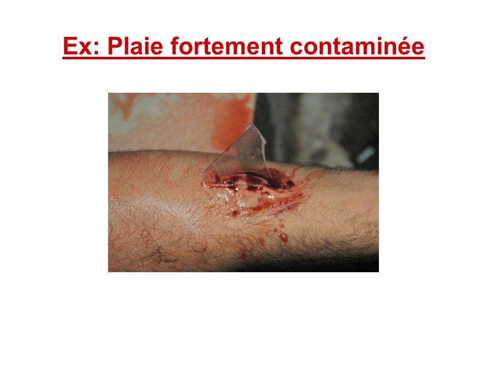 Ex: Plaie fortement contaminée