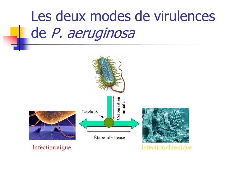 Lung infection model in Pseudomonas aeruginosa Pseudomonas aeruginosa TTSS switched off Active TTSS Toxic effectors Lung epithelium TTSS switched on Polack et al
