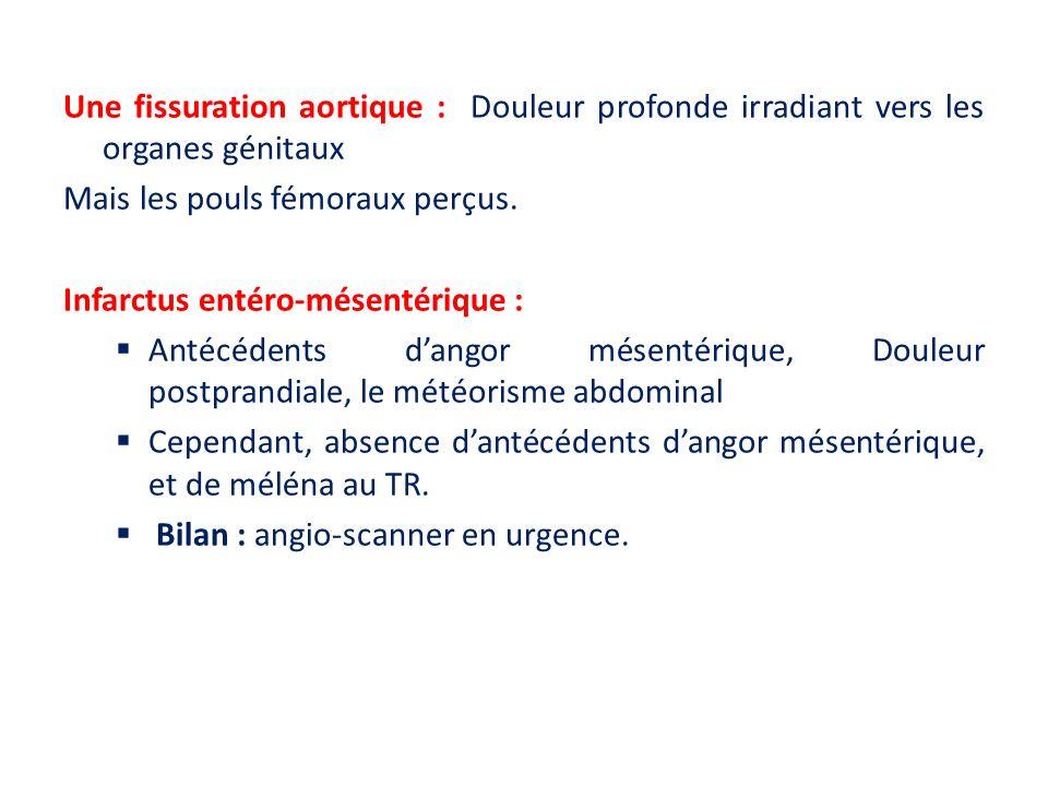 Une fissuration aortique : Douleur profonde irradiant vers les organes génitaux Mais les pouls fémoraux perçus. Infarctus entéro-mésentérique : Antécé
