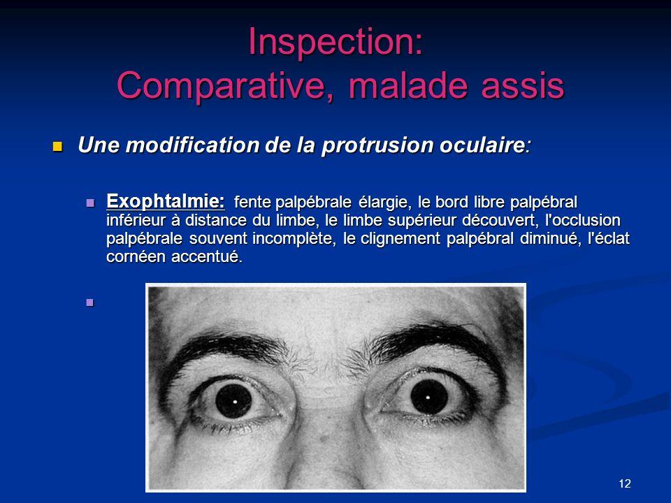 12 Inspection: Comparative, malade assis Une modification de la protrusion oculaire: Une modification de la protrusion oculaire: Exophtalmie: fente pa