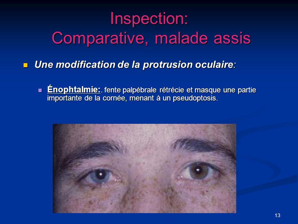 13 Inspection: Comparative, malade assis Une modification de la protrusion oculaire: Une modification de la protrusion oculaire: Énophtalmie:. fente p