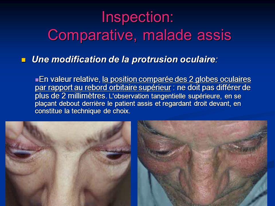 14 Inspection: Comparative, malade assis Une modification de la protrusion oculaire: Une modification de la protrusion oculaire: En valeur relative, l