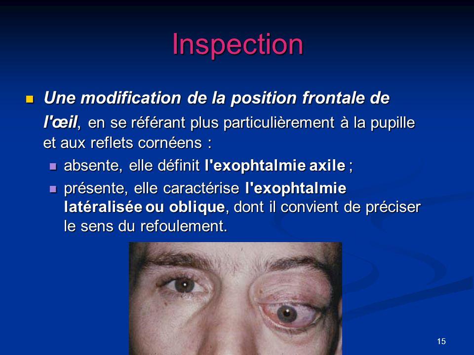 15 Inspection Une modification de la position frontale de l'œil, en se référant plus particulièrement à la pupille et aux reflets cornéens : Une modif