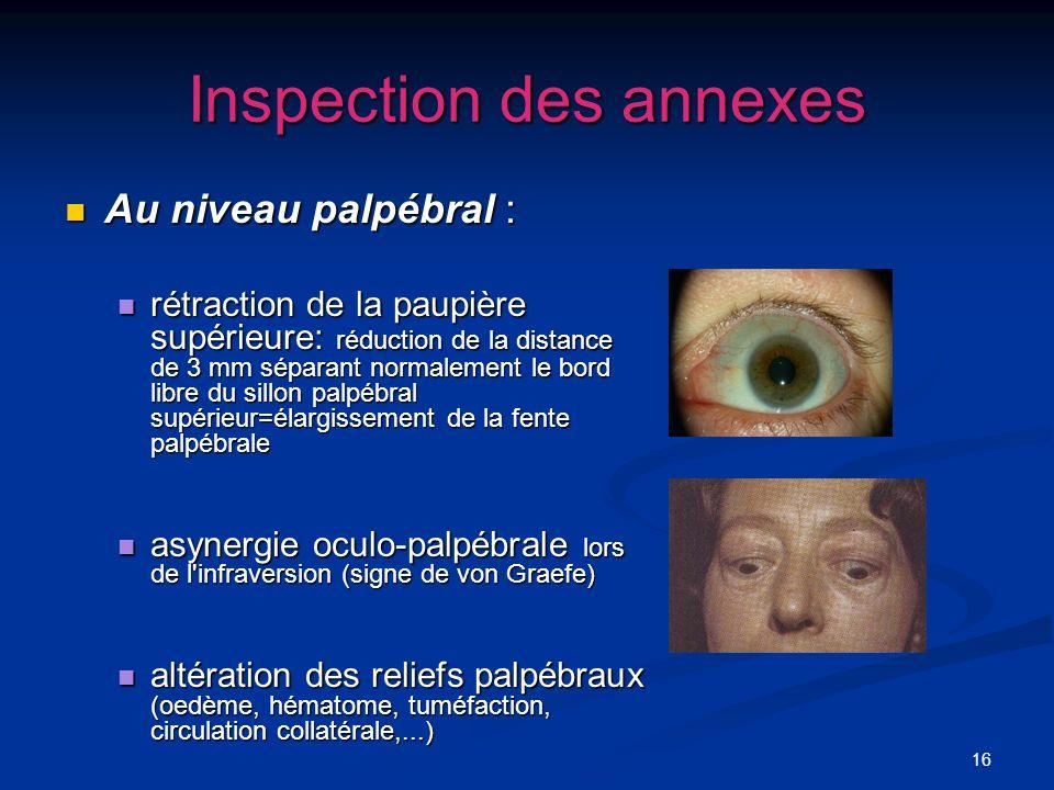 16 Inspection des annexes Au niveau palpébral : Au niveau palpébral : rétraction de la paupière supérieure: réduction de la distance de 3 mm séparant