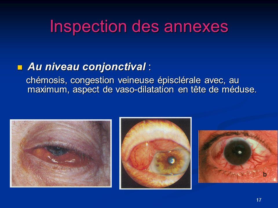 17 Inspection des annexes Au niveau conjonctival : Au niveau conjonctival : chémosis, congestion veineuse épisclérale avec, au maximum, aspect de vaso