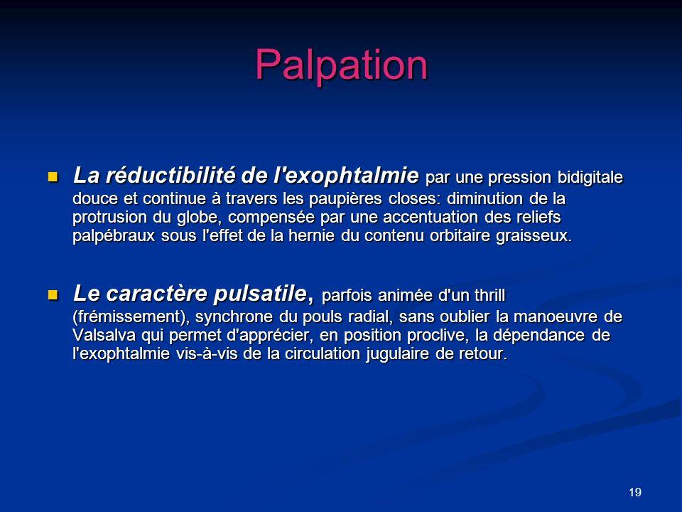 19 Palpation La réductibilité de l'exophtalmie par une pression bidigitale douce et continue à travers les paupières closes: diminution de la protrusi