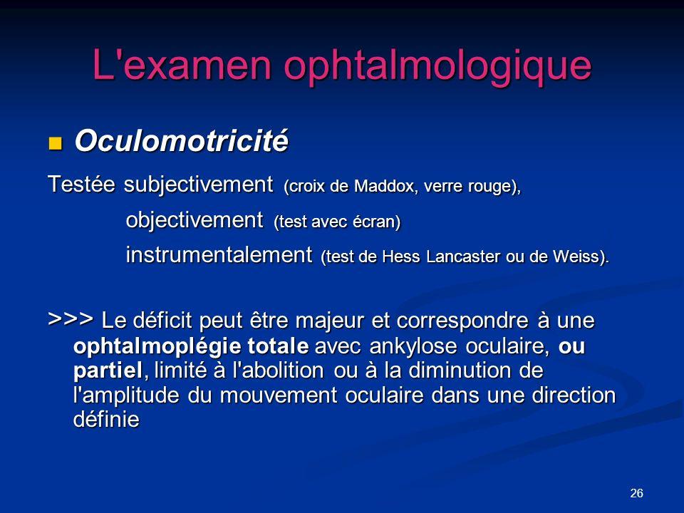 26 L'examen ophtalmologique Oculomotricité Oculomotricité Testée subjectivement (croix de Maddox, verre rouge), objectivement (test avec écran) object