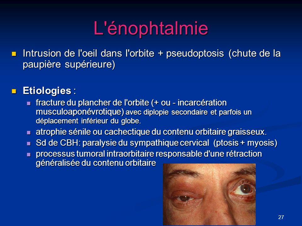 27 L'énophtalmie Intrusion de l'oeil dans l'orbite + pseudoptosis (chute de la paupière supérieure) Intrusion de l'oeil dans l'orbite + pseudoptosis (