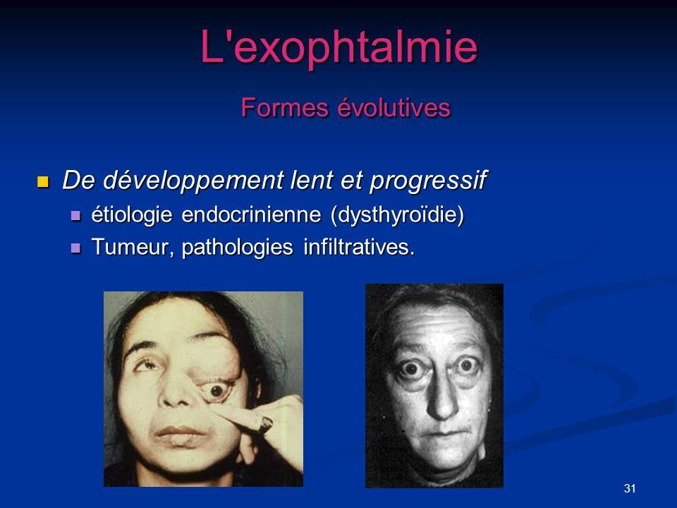 31 L'exophtalmie Formes évolutives De développement lent et progressif De développement lent et progressif étiologie endocrinienne (dysthyroïdie) étio