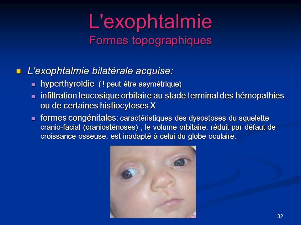 32 L'exophtalmie Formes topographiques L'exophtalmie bilatérale acquise: L'exophtalmie bilatérale acquise: hyperthyroïdie ( ! peut être asymétrique) h