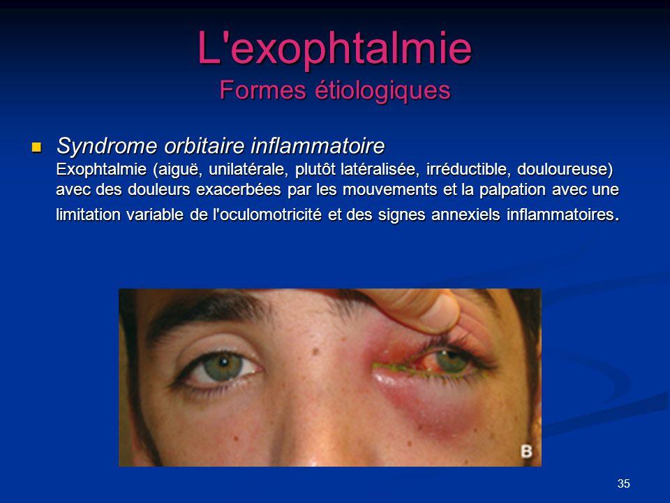 35 L'exophtalmie Formes étiologiques Syndrome orbitaire inflammatoire Exophtalmie (aiguë, unilatérale, plutôt latéralisée, irréductible, douloureuse)